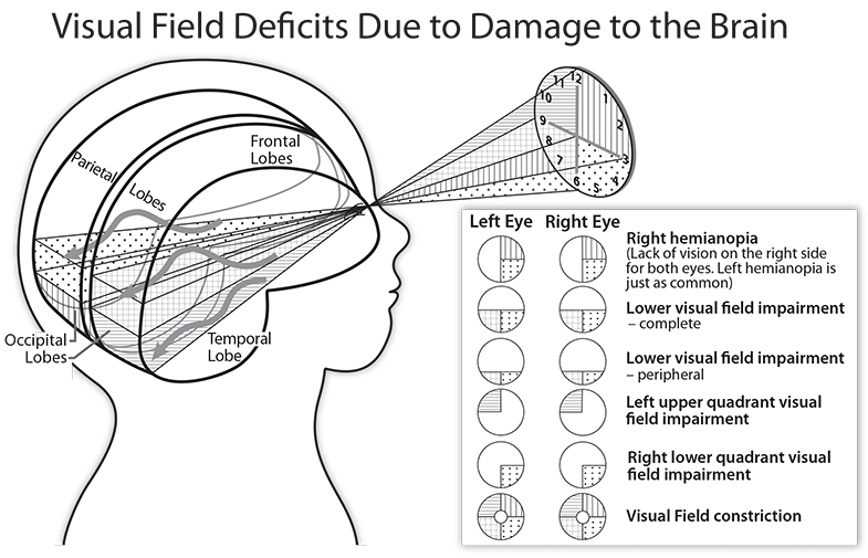 Diagram showing how injuries to different parts of the occipital lobes affect vision.