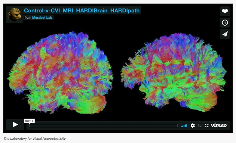 Our introduction and brief explanation to a film of two 3D rotating brains, one with, and one without CVI, showing the dorsal and ventral stream pathways.